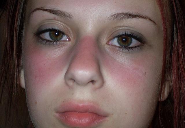 Hồng ban ở bệnh nhân lupus ban đỏ