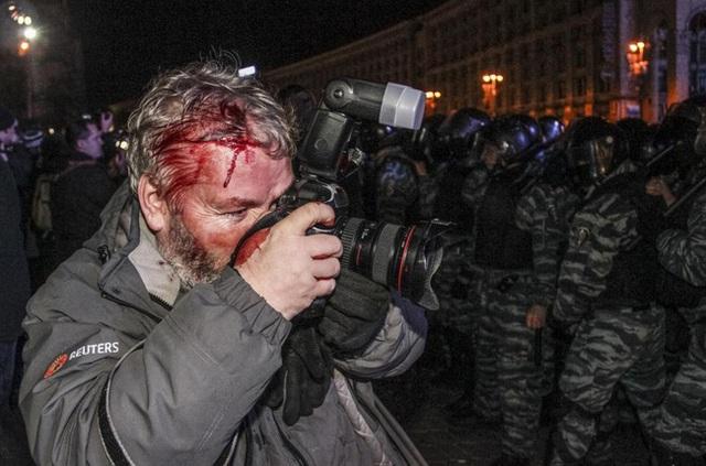 Phóng viên Gleb Garanich của hãng Reuters bị thương trong lúc tác nghiệp khi lực lượng cảnh sát chống bạo loạn đang cố gắng ngăn chặn dòng người biểu tình ủng hộ việc gia nhập EU tại Quảng trường Độc lập ở Kiev, Ukraine vào ngày 30/11/2013.