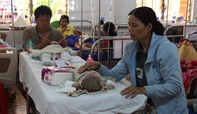 Hai cháu nhỏ bị bỏng nặng điều trị tại bệnh viện. Ảnh: M.Q