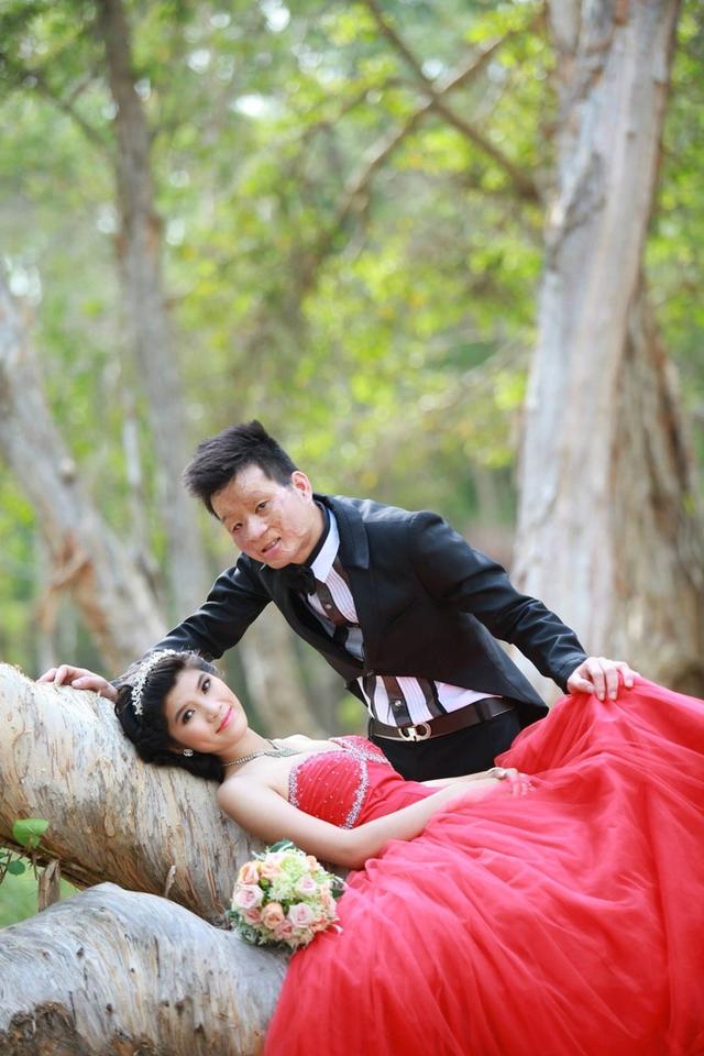 Ảnh cưới của cặp đôi chồng xấu - vợ xinh