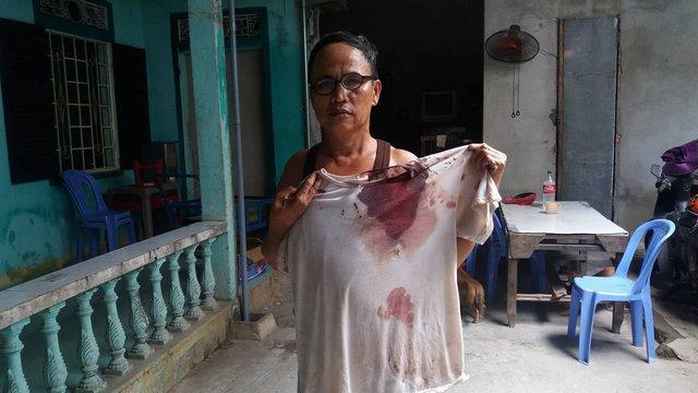 Chiếc áo của ông Lộc mặc lúc bị hành hung dính đầy máu. Ảnh: Lê Chung