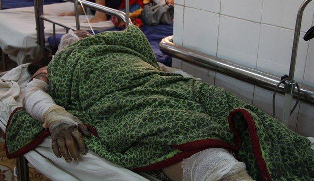 Chị Khèn nằm điều trị tại bệnh viện với vết bỏng toàn thân. Ảnh: M.Q