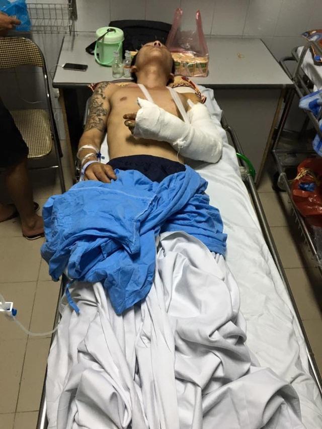 Anh Nguyễn Tuấn Dũng bị nhóm côn đồ chém gần lìa cánh tay. (Ảnh: Nguyễn T. Đ)