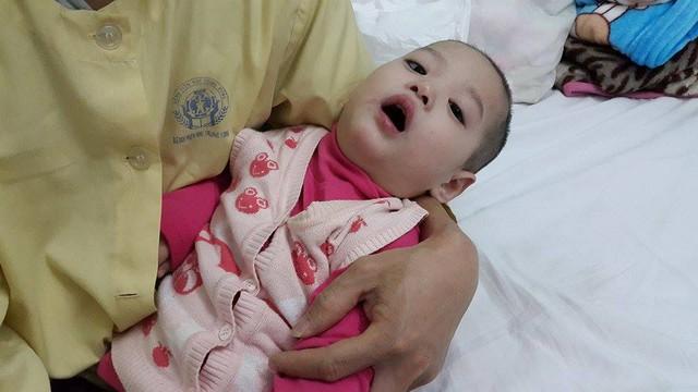 Cháu Dương đã 23 tháng tuổi nhưng chưa biết ngồi, biết đi