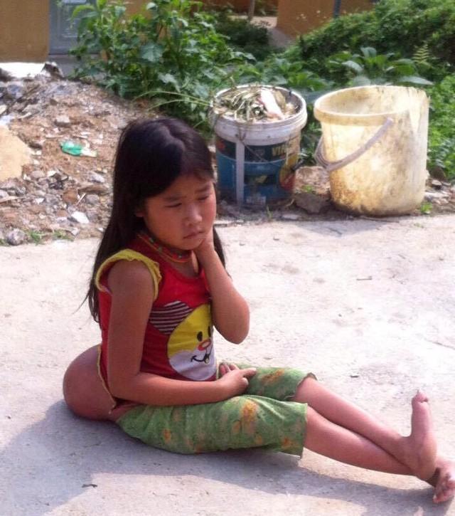 Bé gái Mông 10 tuổi với khối u to khủng và đôi chân teo tóp. Ảnh: Thanh Hoa