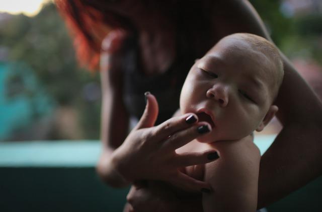 Virus Zika gây bệnh đầu nhỏ ở trẻ sơ sinh.