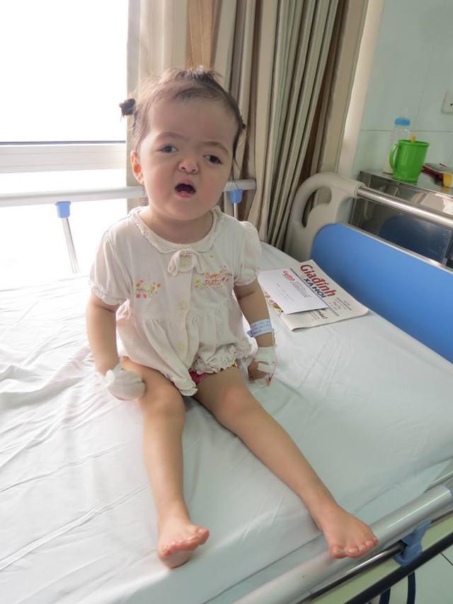 Cháu Quỳnh Anh sẽ phải trải qua nhiều đợt phẫu thuật tách ngón tay, chân khác. Ảnh Tất Thắng