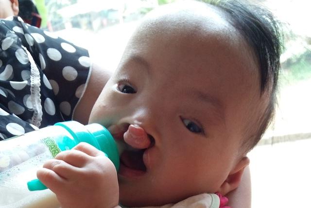 Bé Nông Thị TườngVi, 10 tháng tuổi, dân tộc Nùng bị mắc cùng lúc 3 căn bệnh: Hở hàm ếch, tim bẩm sinh và đục thủy tinh thể mắt trái. Ảnh: M.Hoa