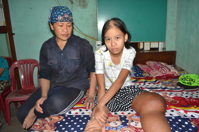 Gia đình chị Vinh không biết lấy tiền đâu để điều trị bệnh ung thư xương cho con gái.