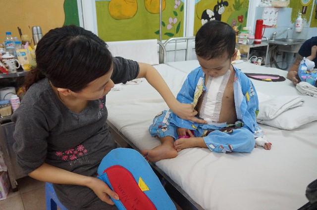 Vết sẹo phẫu thuật tim của bé Hải Nam kéo dài gần hết phần thân trên.