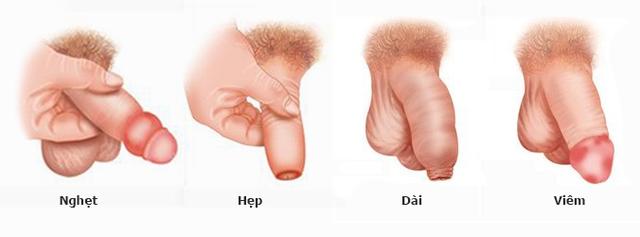 Các dạng bao quy đầu có thể dẫn đến ung thư dương vật