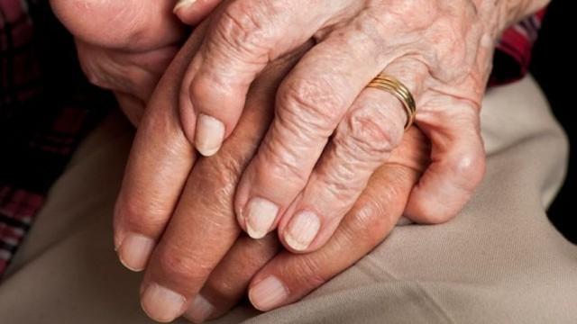 Viêm khớp dạng thấp gây đau nhức các khớp xương bàn tay