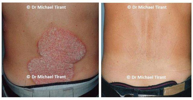 Điều trị bệnh vảy nến bằng phương pháp Dr Michaels thảo dược trong 8 tuần.