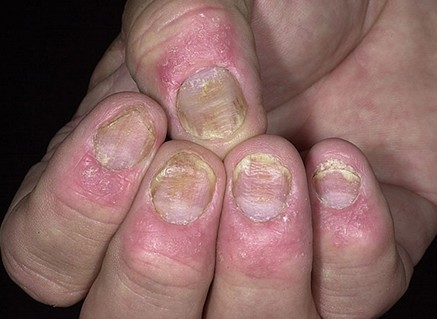 Thương tổn móng ở bệnh nhân vẩy nến   1