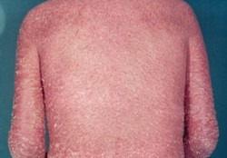 Vẩy nến thể đỏ da toàn thân – Khó khăn trong việc điều trị 1