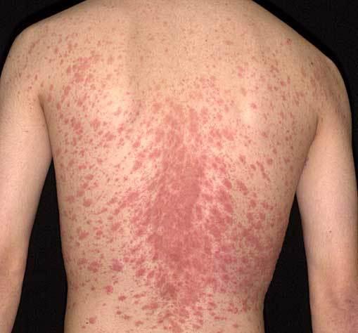 Tẩy sạch các bệnh vẩy trên da bằng những sản phẩm thiên nhiên 1