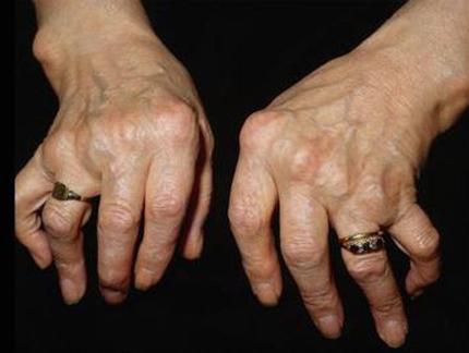 Những kiểu biến dạng khớp do viêm khớp dạng thấp 1