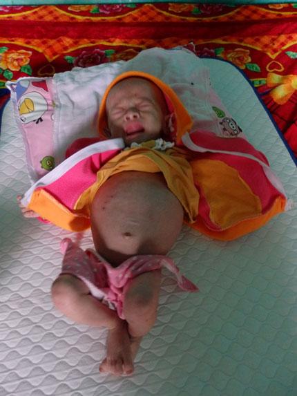 Xót xa hình ảnh bụng ngày càng phình to của bé Nguyễn Thị Dung 3