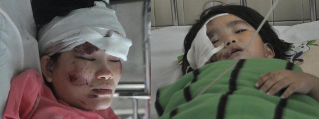 Mẹ con chị Thúy Vân, nạn nhân vụ nổ, đang điều trị tại BV Chợ Rẫy.
