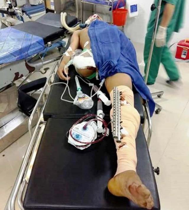 Anh Tuấn bị dập nát chân phải nên phải cắt bỏ để đảm bảo tính mạng. Ảnh: C.H.