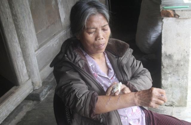 Bà Vỹ bị nhiều thương tích sau khi quyết liệt chống trả lại tên cướp dùng dao