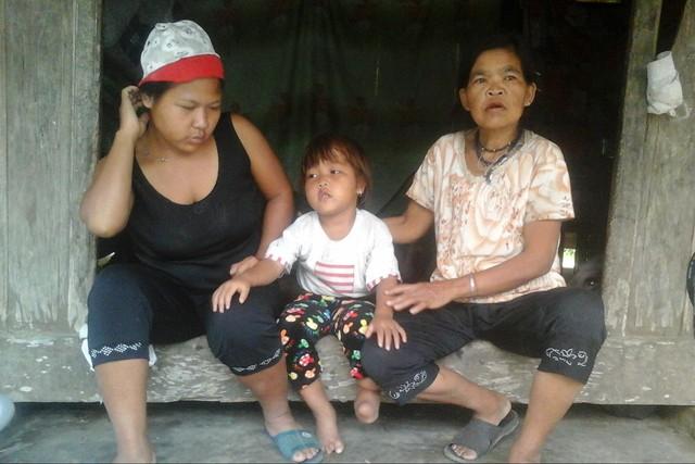 Chị Hồ Thị Sâm có ba người con, nhưng cô con gái Huyền Trang (4 tuổi) bị dị tật bàn chân từ khi lọt lòng. Ảnh: Hùng Lê