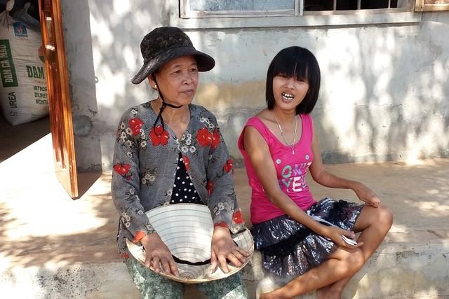 Bà Hòa và cô con nuôi bị chất độc da cam. Ảnh: H.Diễm
