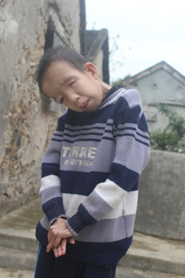 Trần Văn Lộc, 14 tuổi, chỉ nặng 10kg, mắt trái hỏng, mắt phải kém