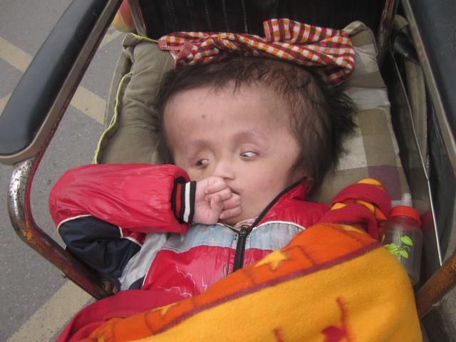 Sinh ra, Trung không đi, đứng được mà chỉ nằm một chỗ với cái đồ to bất thường