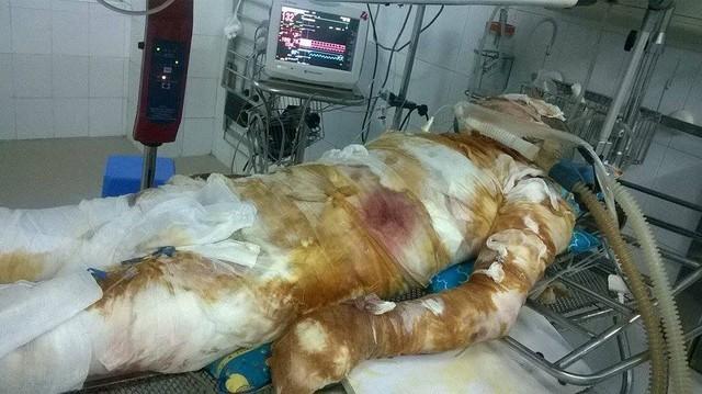 Tai nạn khiến cho anh Hùng bỏng 70%