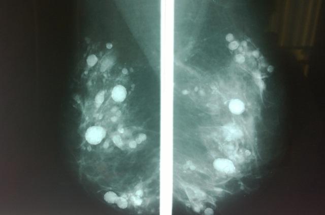 Nhũ ảnh với hàng trăm đốm sáng vì silicon khiến chuyên gia không thể phát hiện khối u (nếu có).