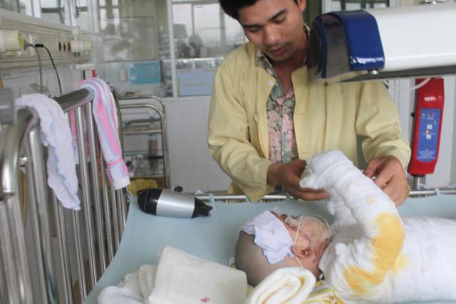 Thảo trong vòng tay chăm sóc của bố những ngày đầu bị bỏng, 4/2012