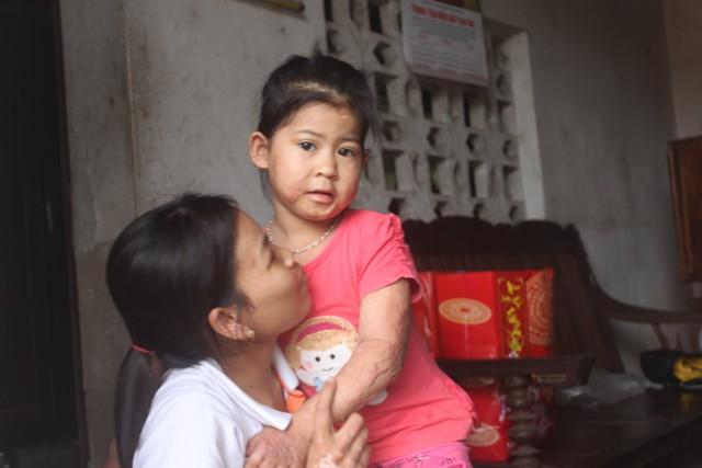 Nhưng điều kỳ diệu nhất là 3 năm sau tai nạn bỏng đến 85% cơ thể, Thảo đã có thể đi lại và tiếp tục đến trường
