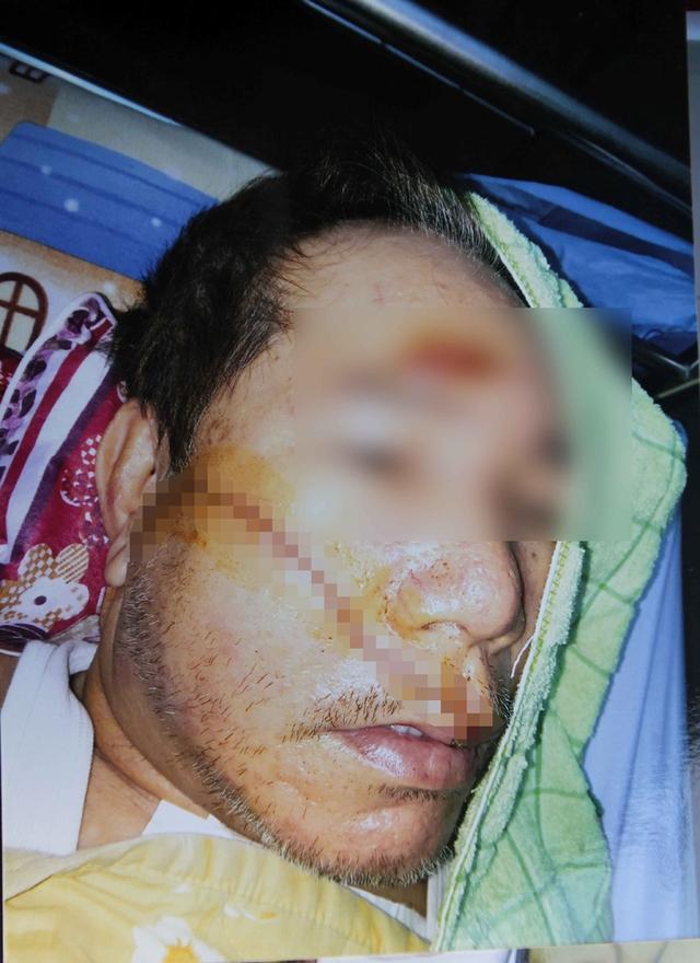 Ông Q. bị hai nam thanh niên chém bị thương nặng trước vùng mặt.