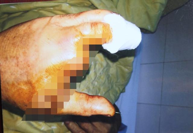 Ba ngón tay của ông Q. cũng bị chém đứt.