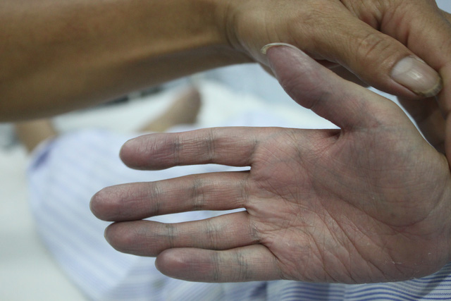 Bàn tay tội nghiệp của cậu bé 10 tuổi thâm tím và nhăn nhúm