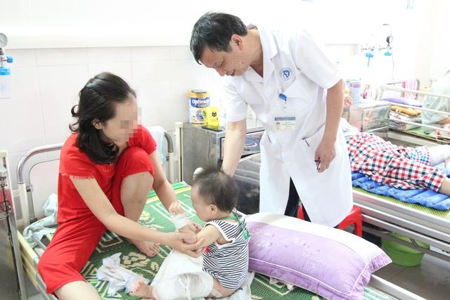 BS Nguyễn Thống thăm khám cho một bệnh nhi bị bỏng. Ảnh: LP