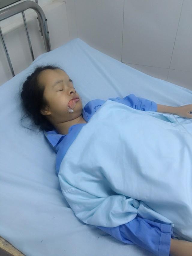 Cơ thể nhỏ bé của bé Trâm đang phải chịu đựng rất nhiều bệnh cùng lúc. Ảnh NT