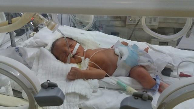 Ngay sau khi sinh, con trai cô giáo Hường chào đời với cấn nặng 1,6kg được chuyển về chăm sóc tại BV Phụ sản Trung ương.