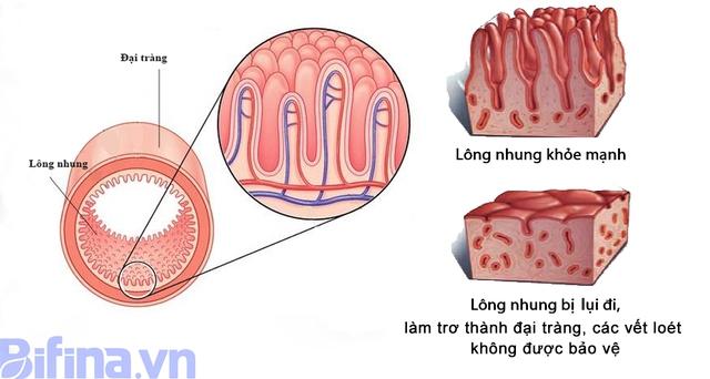 Bổ sung lợi khuẩn Bifido giúp thoát khỏi viêm đại tràng