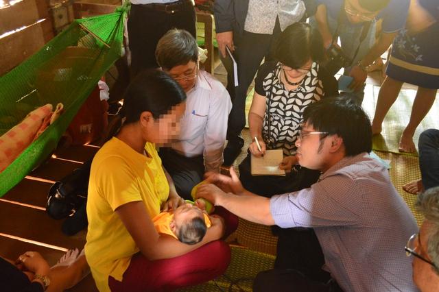 Kiểm tra trường hợp bé gái 4 tháng tuổi bị tị dật đầu nhỏ ở Đắk Lắk.
