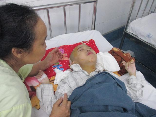 12 năm nuôi con là chừng ấy thời gian cô Hương ôm con đi viện. Ảnh Phúc Liên vừa trải qua cuộc phẫu thuật não lần 2 cách đây 2 năm. Ảnh: N.Mai