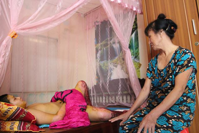 Bà Thuận xót xa khi cháu ngoại bị bỏng nặng.