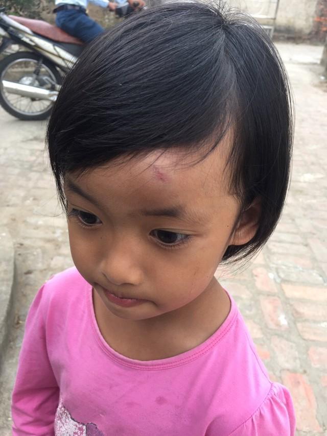 Bé gái 4 tuổi bị cô giáo ném dép vào mặt gây thương tích vì nói chuyện với bạn trong lớp. Ảnh: Bạn đọc cung cấp