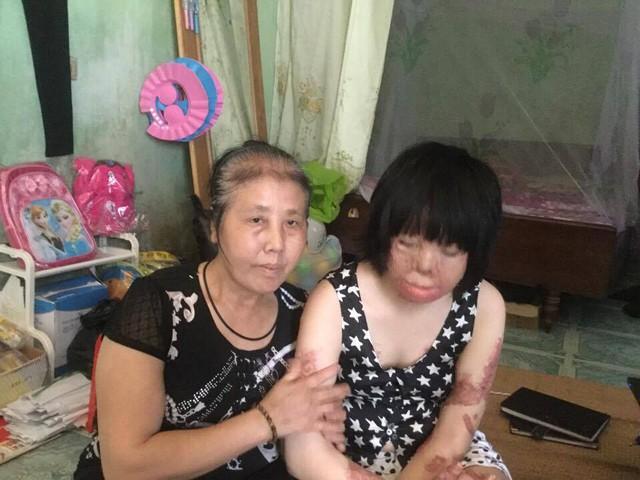 Thùy Dung và mẹ của mình. Ảnh: Ngọc Thi