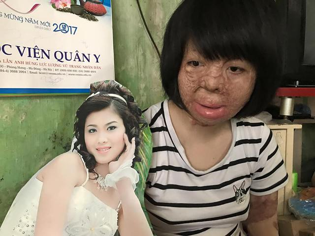 Thùy Dung từng là một cô gái xinh đẹp khi chưa gặp nạn (ảnh nhân vật cung cấp)