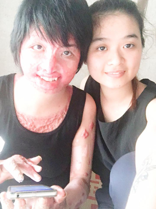 Chị Trang và em gái ruột (ảnh nhân vật cung cấp)
