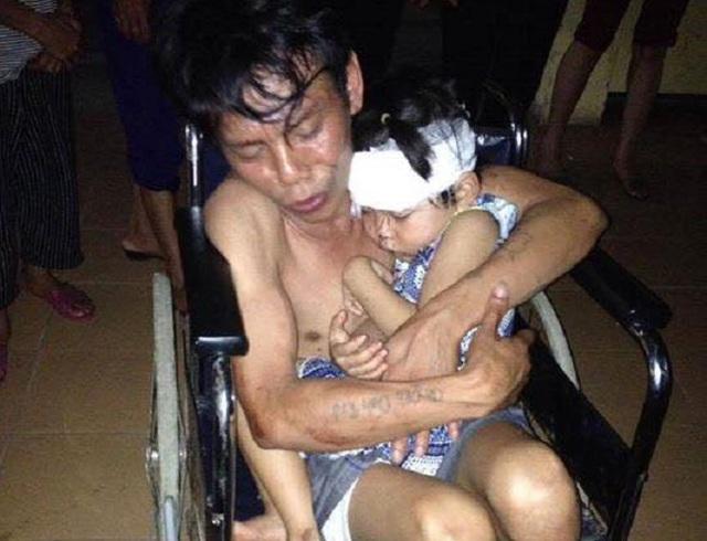 Anh Sự và con gái 2 tuổi bị chấn thương đầu trong vụ tai nạn. Ảnh: NguyễN Bảo Ngọc
