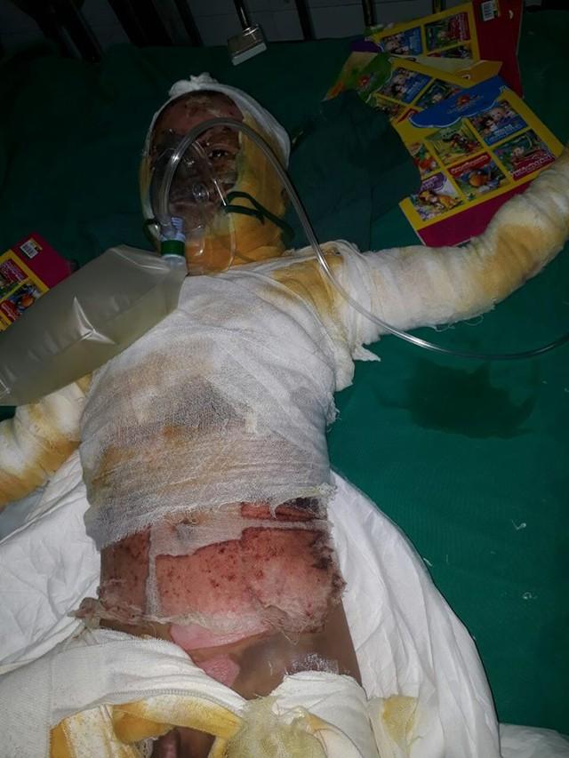 Bé Đức vẫn đang nằm tại Viện Bỏng Quốc gia để điều trị. Khắp cơ thể em được cuốn bằng một dải băng trắng gần kín khuôn mặt. Ảnh: Ngọc Thi
