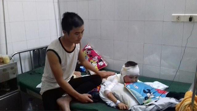Anh Cháng A Chua cho biết, trong tương lai con trai anh sẽ phải làm nhiều cuộc ghép da. Ảnh: Ngọc Thi